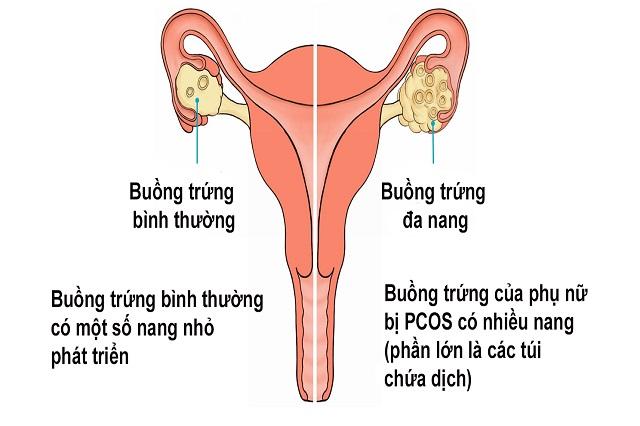 Bệnh buồng trứng đa nang ở phụ nữ