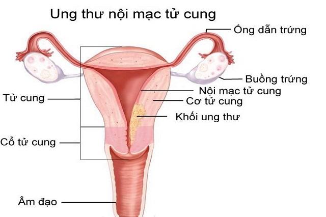 Người mắc buồng trứng đa nang có nguy cơ bị ung thư nội mạc tử cung
