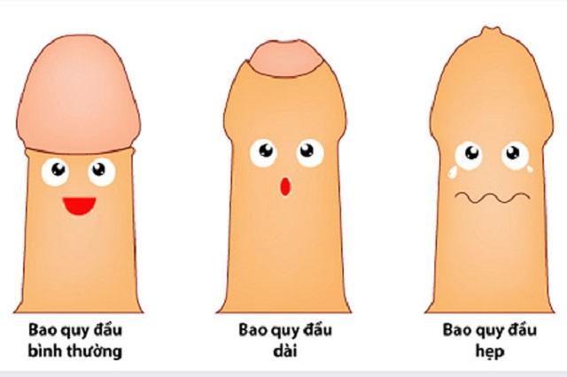 Hẹp bao quy đầu – căn bệnh thường gặp ở nam giới